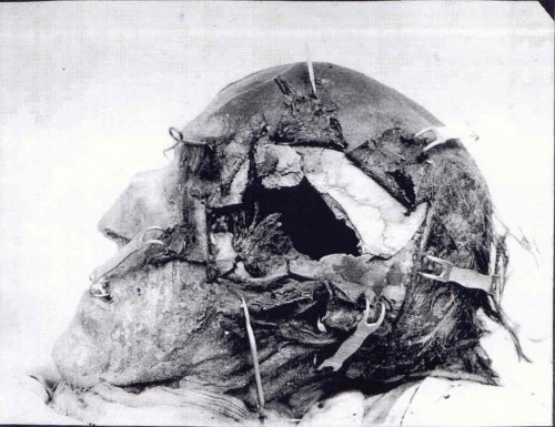 Charles-autopsy-500x385